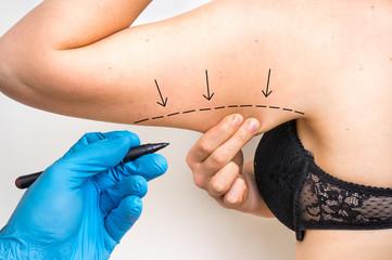 ¿Por qué debería hacerme una braquioplastia?